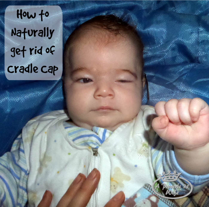 "Use this natural treatment for cradle cap and ""punch"" those nasty flakes to the curb!"